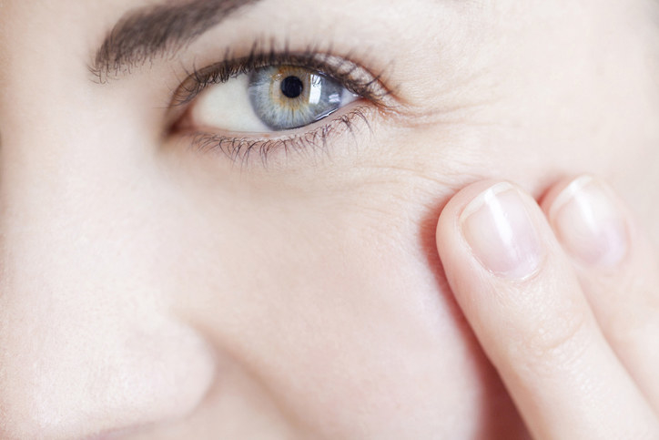 Woman touching the wrinkles around her eye close up