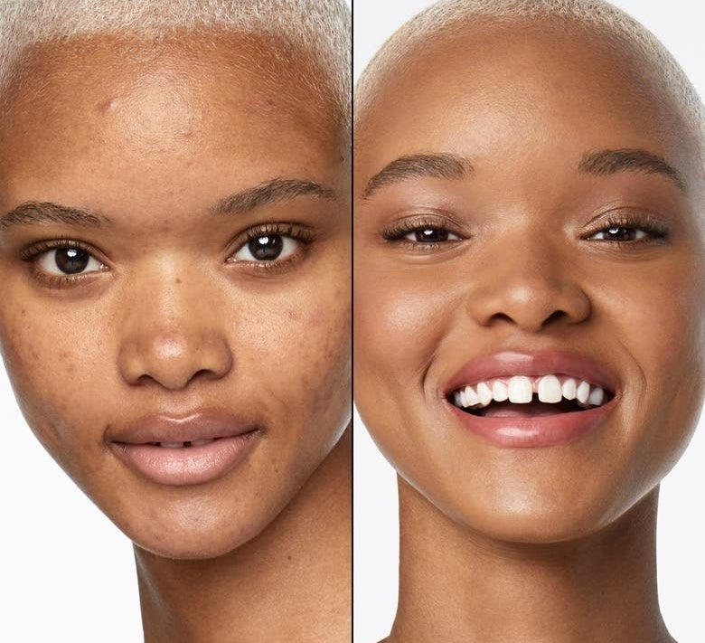 A model before and after using the product, with their skin glowy and clear with blemishes fully covered after