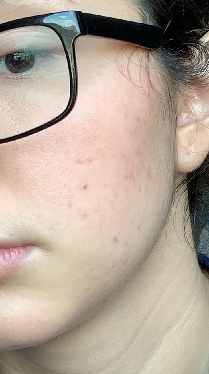 First Aid Beauty FAB Skin Lab .25% Retinol Serum Review