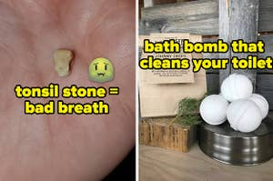 L: Tonsil stone in reviewer's palm R: White fizzing toilet cleaners that look like bath bombs