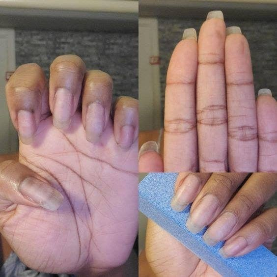Reviewer's picture of their rounded nails after using the buffer