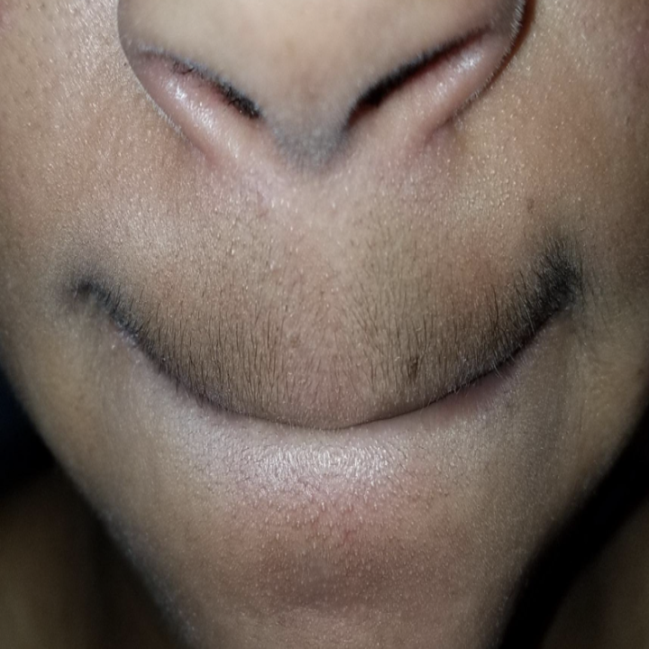person with dark hair on upper lip