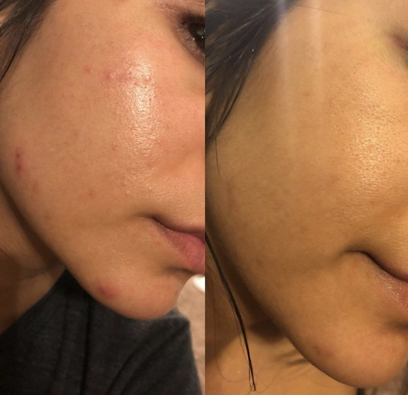 A woman showing before and after images of her skin