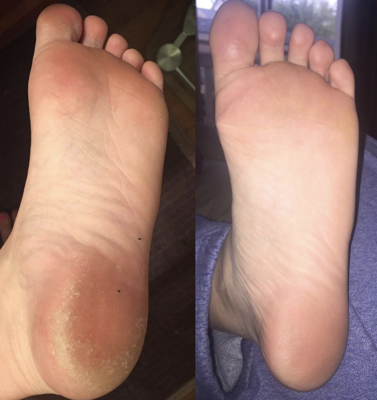 a foot before and after the peel mask