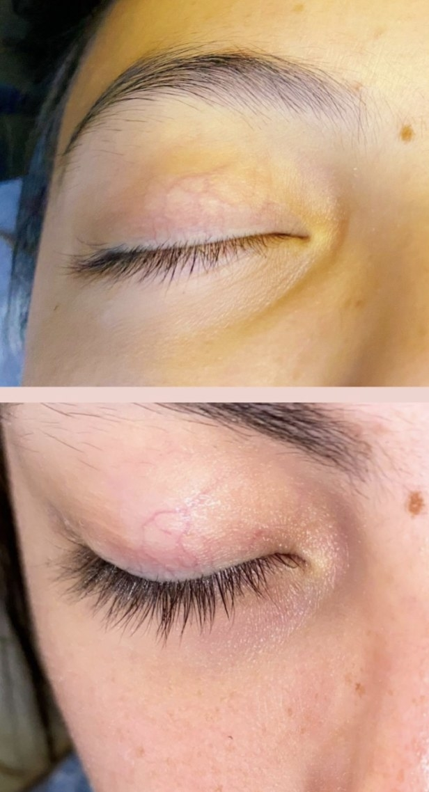 a person before and after using the lash serum