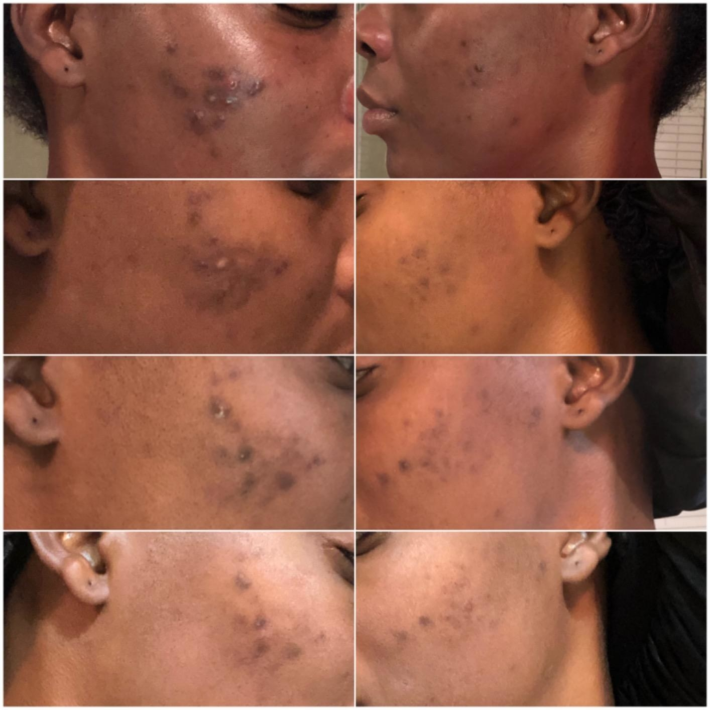 a reviewer showing different phases of their skin getting clearer using the soap