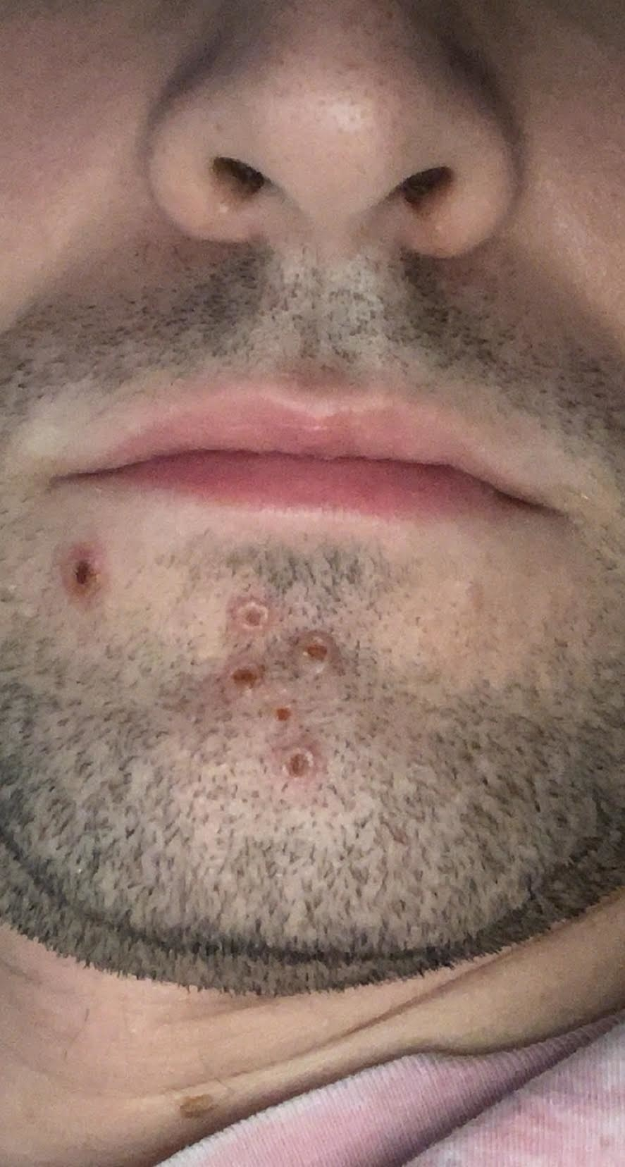 """A closeup of the """"holes"""" on the chin"""