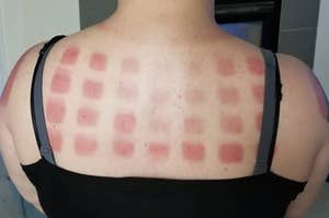Woman with sunburn across her back in the pattern of a grid