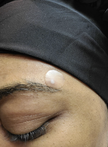 reviewer wearing acne patch above eyebrow