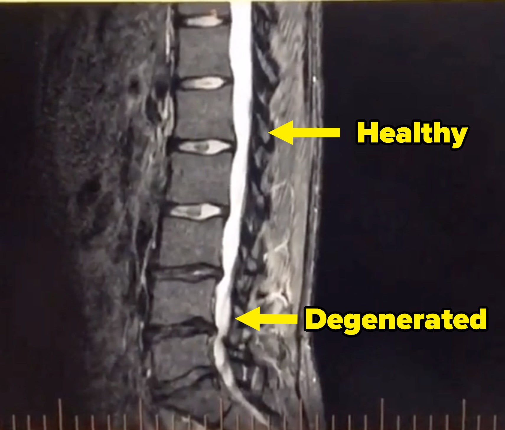 An arrow pointing to a healthy disc and one pointed to a degenerated disc that looks flatter