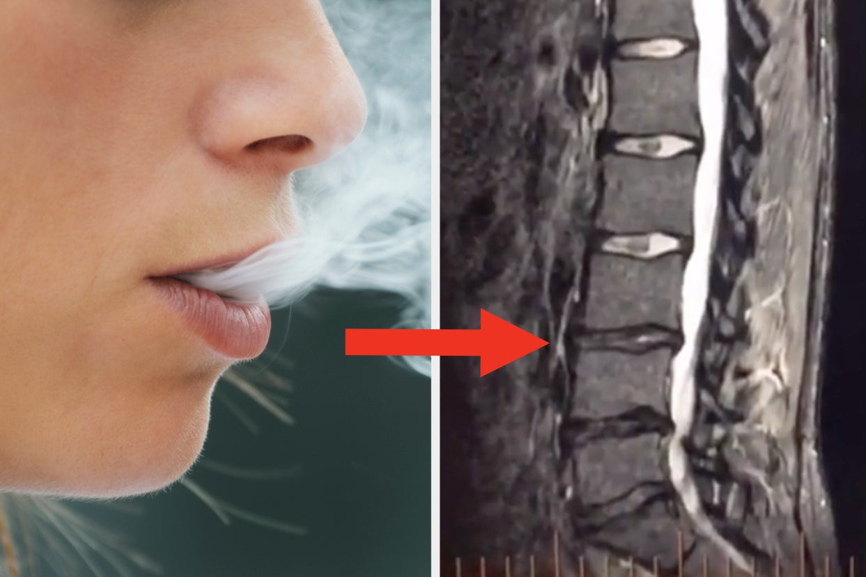 A 23-Year-Old Was Told By Her Doctor That She Has The Back Problems Of Someone In Their 50s It Might Have...