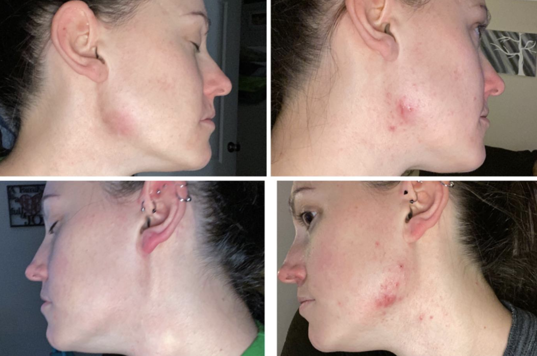reviewer on right with visible acne and less visible acne on left