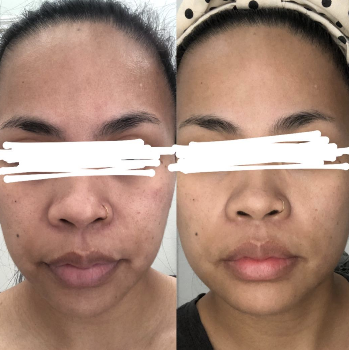 reviewer with visible scarring on left and less visible scarring on right