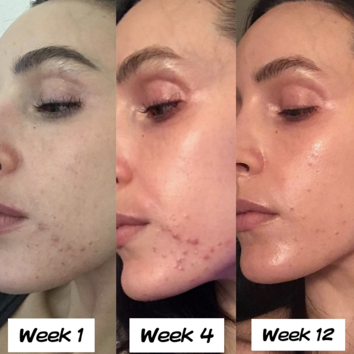 reviewer showing week 1, week 4, and week 12 using product with acne becoming visibly less apparent in each picture