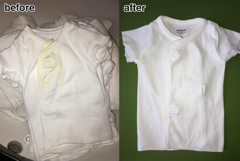 before: reviewer's baby onesie with yellow stain after: onesie looking whiter and with no stain