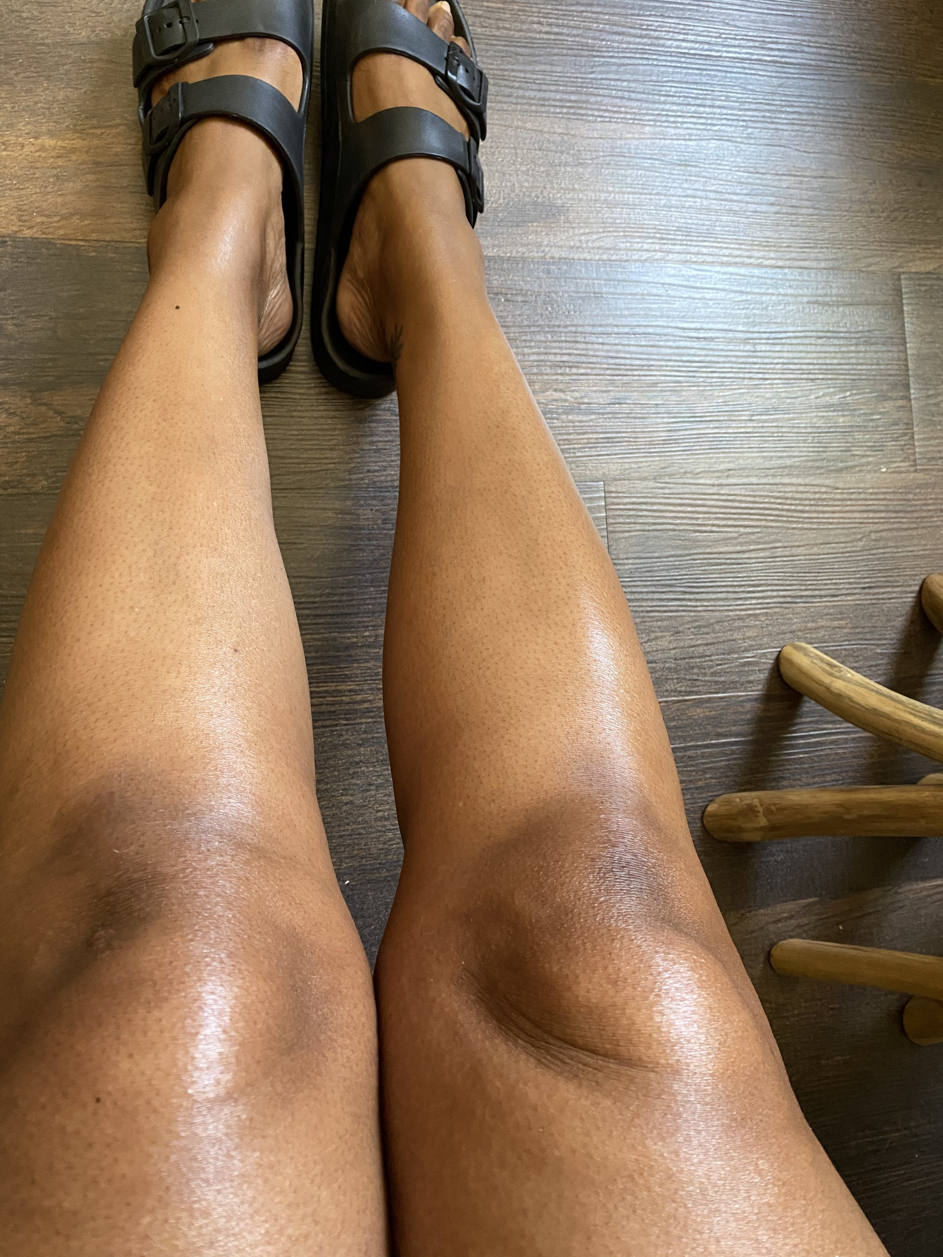 The author showing off her moisturized legs