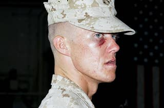 A man in Marine uniform with a black eye looks past the camera