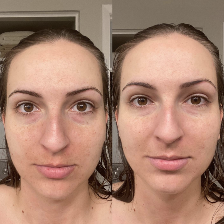 light skin reviewer with some red irritation on face in before pic, then it looking evened out after applying the tinted sunscreen