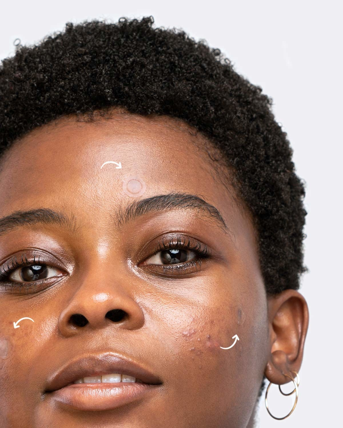 A person using the acne patches on their face.