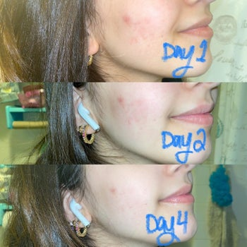 Progression photos showing redness and acne on reviewer's cheeks is reduced on day 2 and day 4