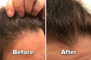 """a split image showing a reviewer scalps looking flaky and dry with text reading """"before"""" and the same scalp without flakes with text reading """"after"""""""