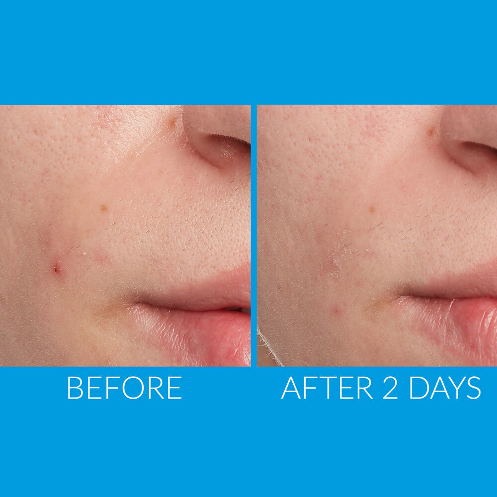 Before and after showing the spot treatment cleared up model's breakouts after two days