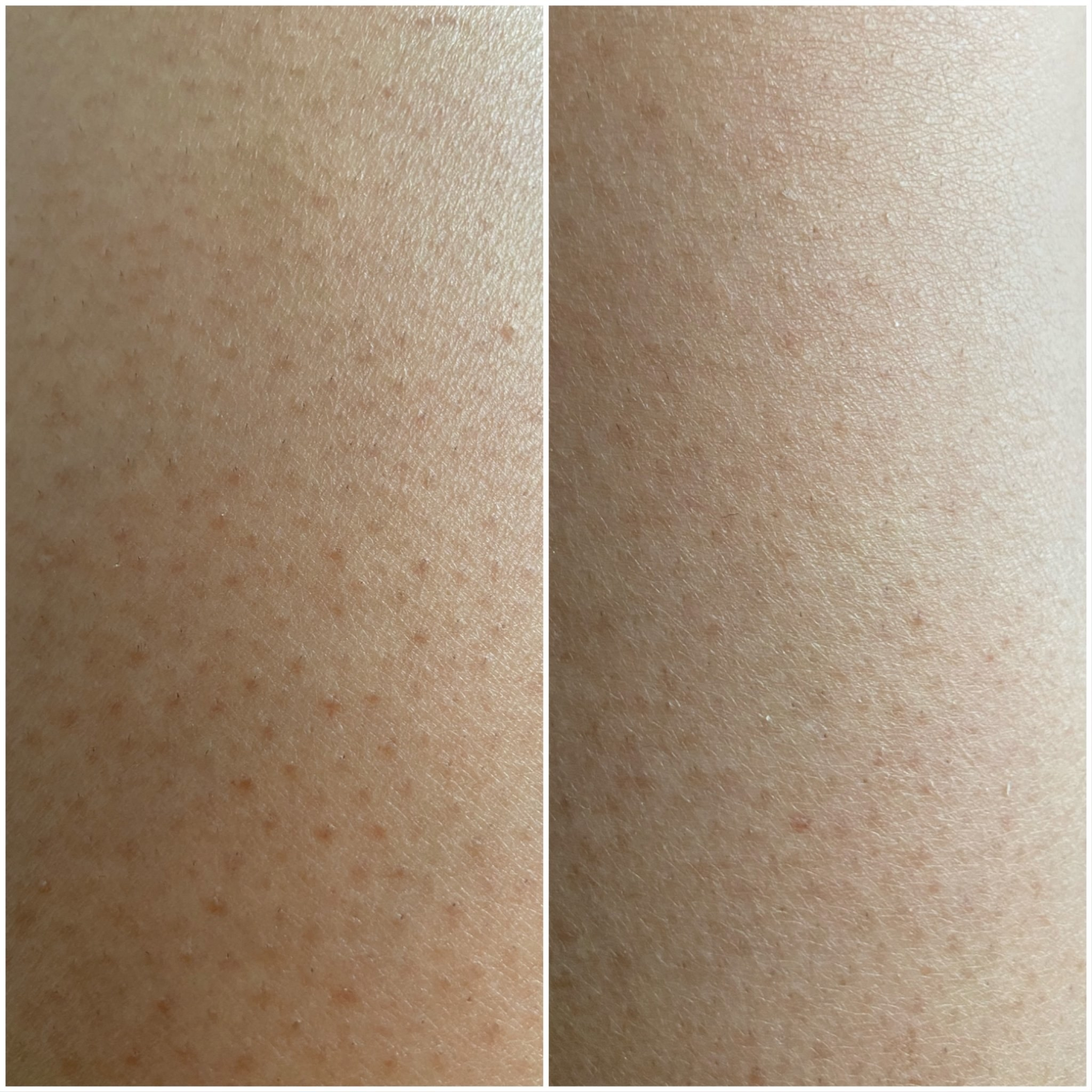 a before and after of skin with ingrown hairs
