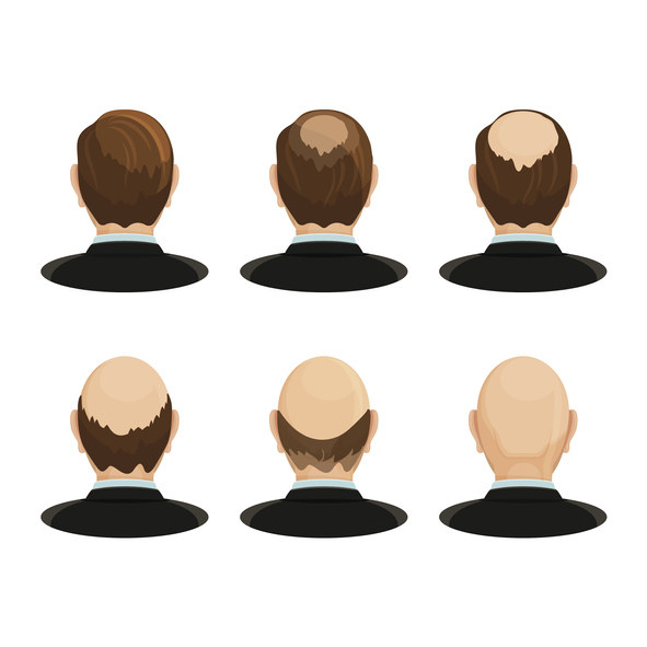Alopecia concept. Set of heads showing the hair loss progress.