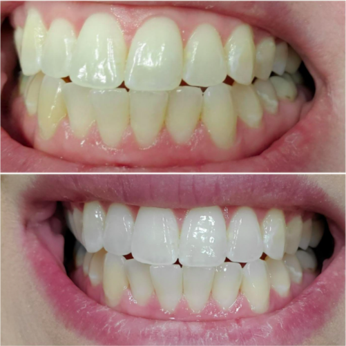 A customer review photo showing their teeth before and then after two uses