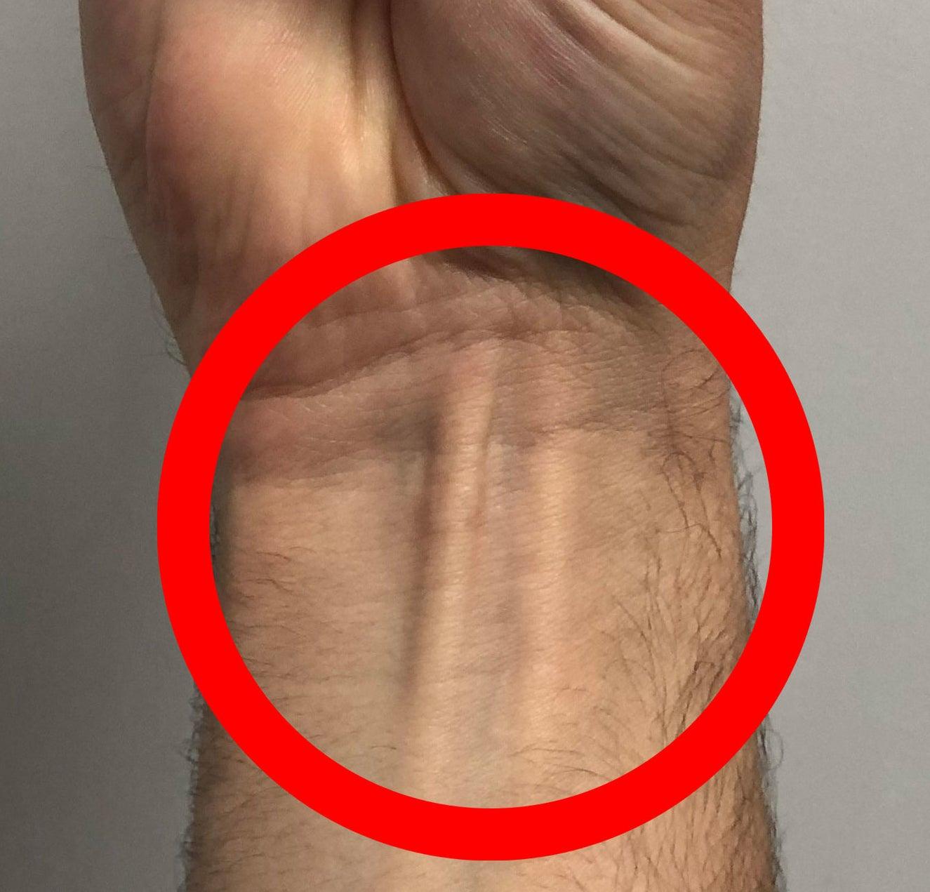 Thepalmaris longus visible in the wrist