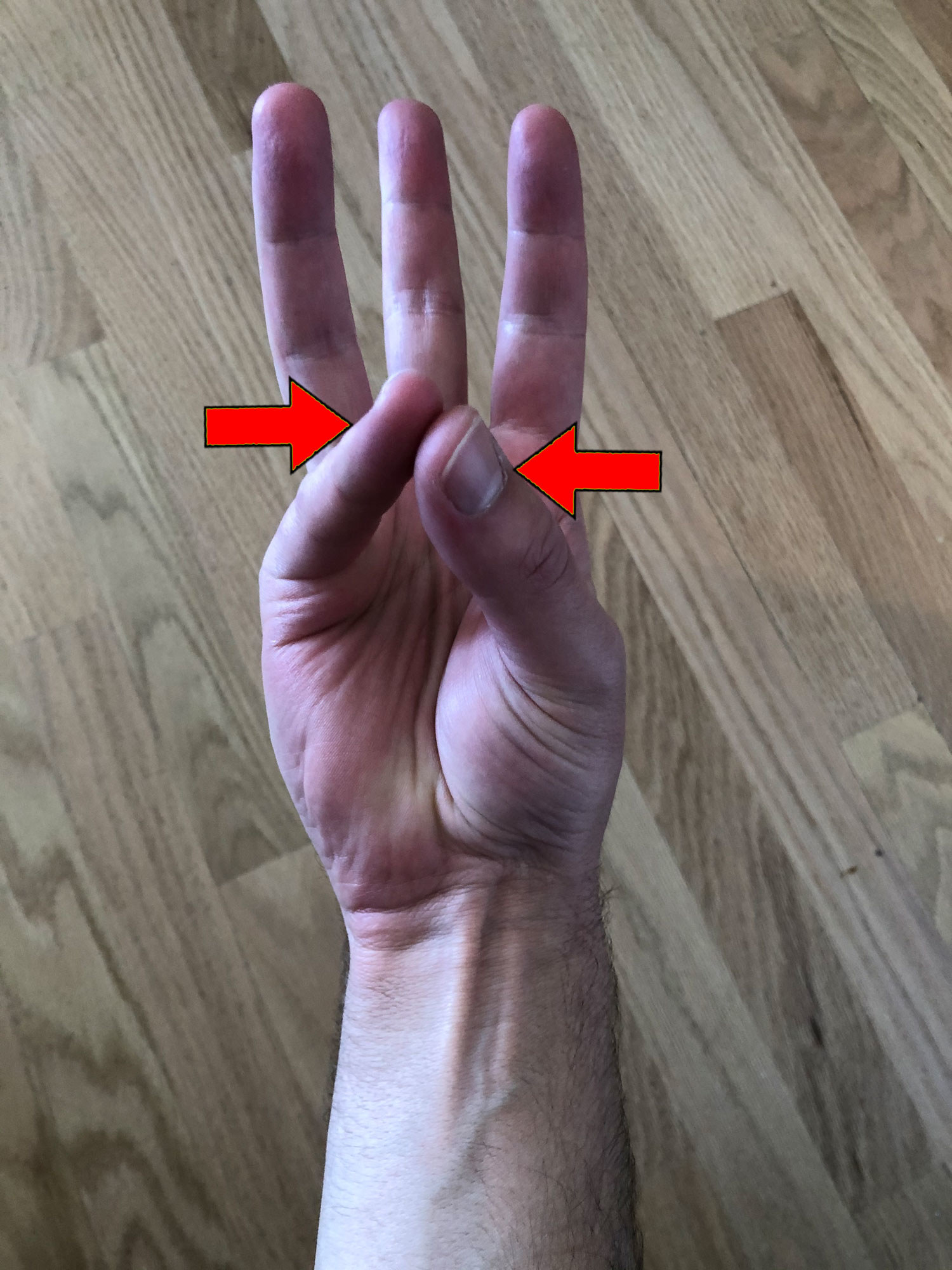 The palmaris longus sticking out of my wrist