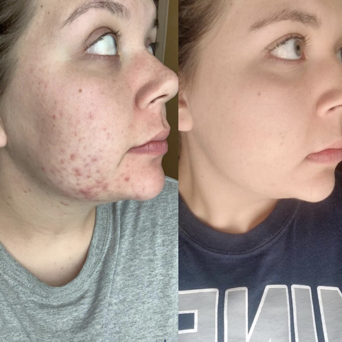 Before and after image of reviewer with cystic acne and without