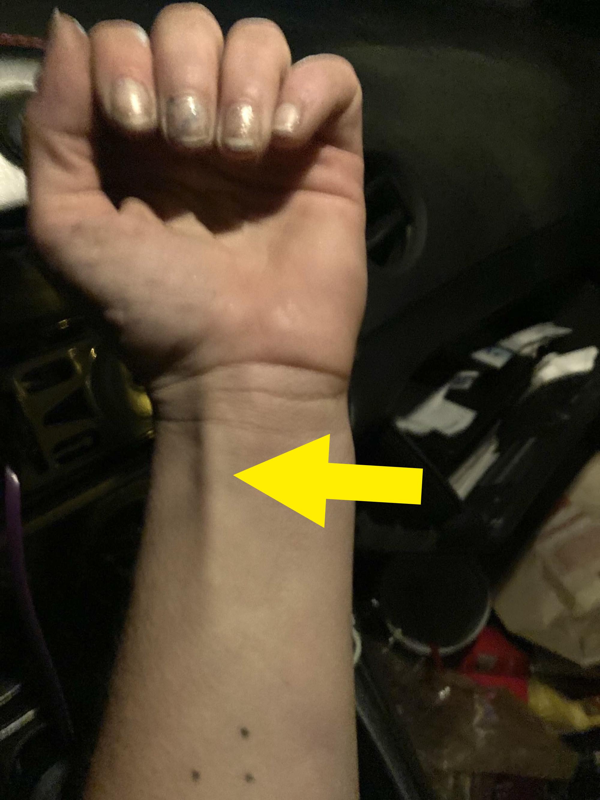Apalmaris longus on a different arm