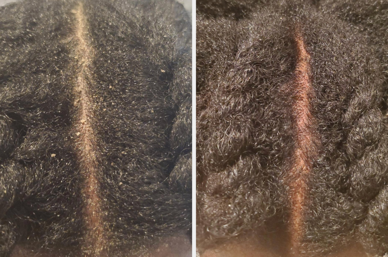 before and after image of reviewer with dandruff on their scalp and without