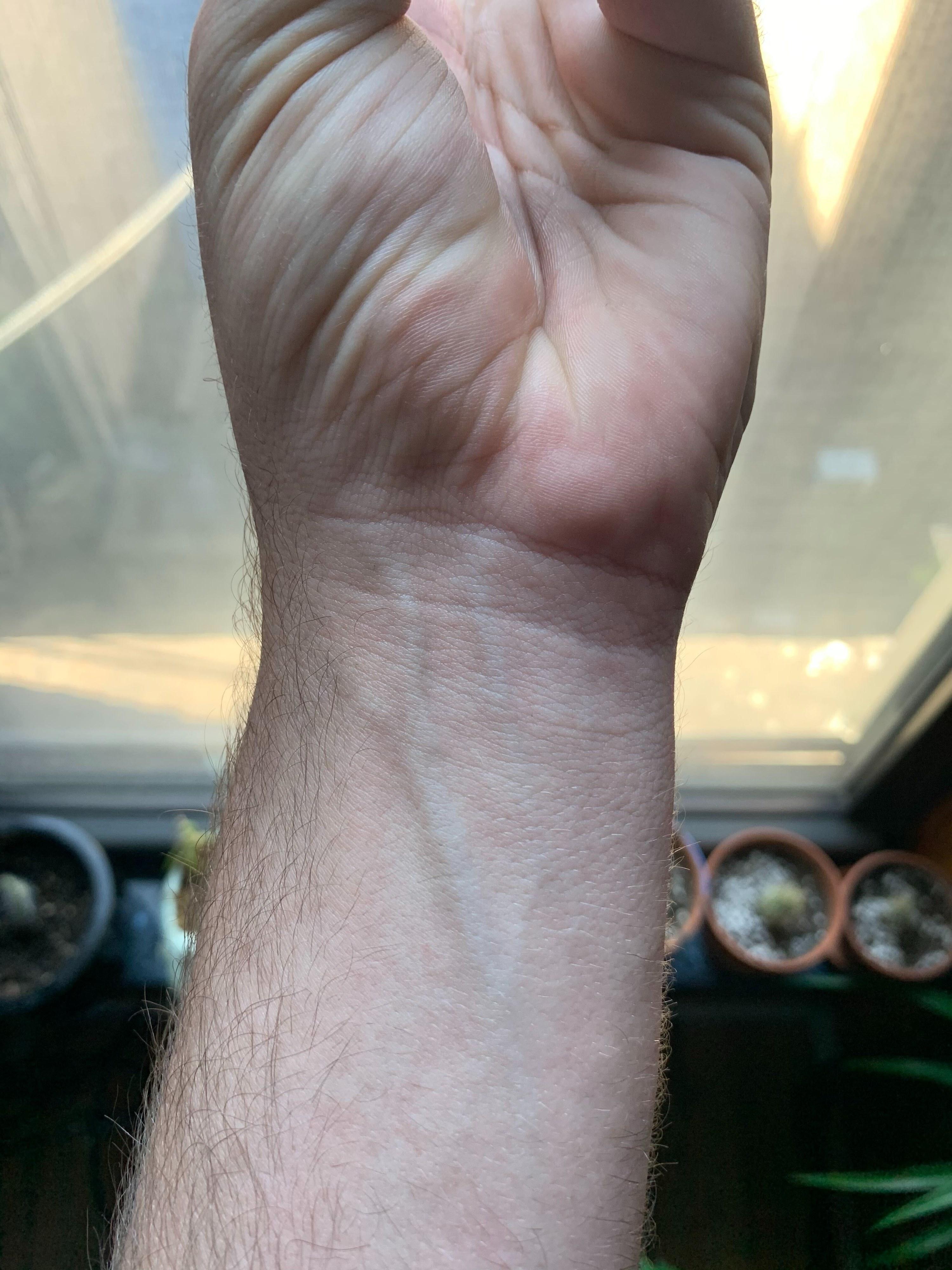 A wrist doing the same flex, but it's flat
