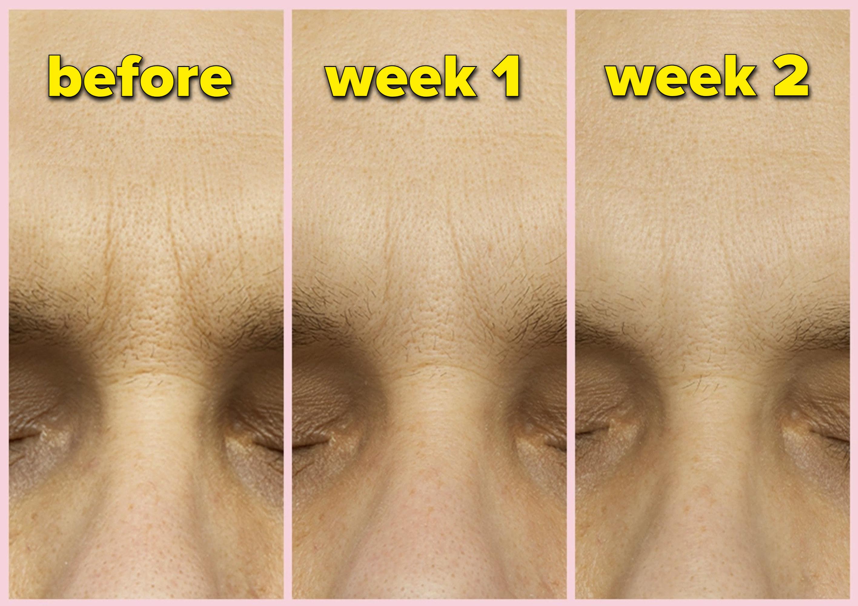 Progress photos of a forehead