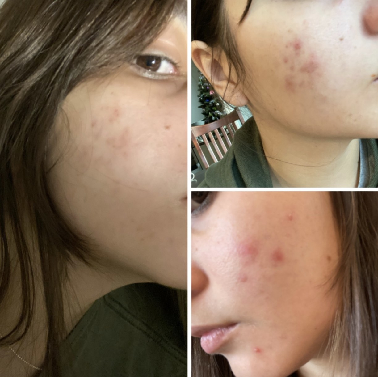 A before and after photo of a person's skin