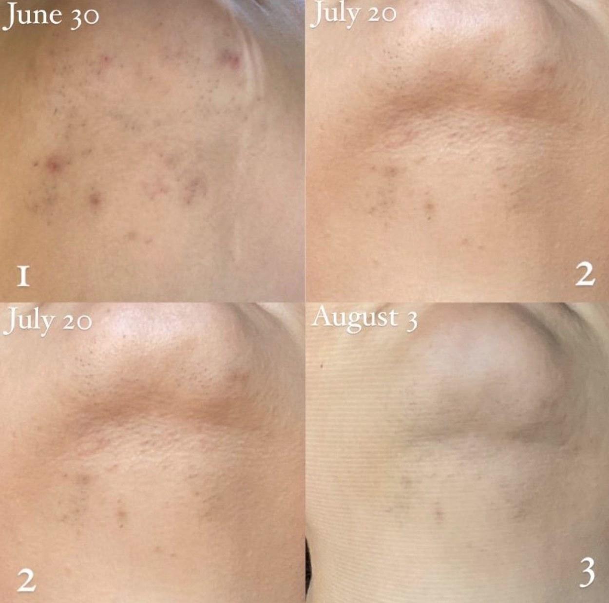 The progress photo of someone's skin