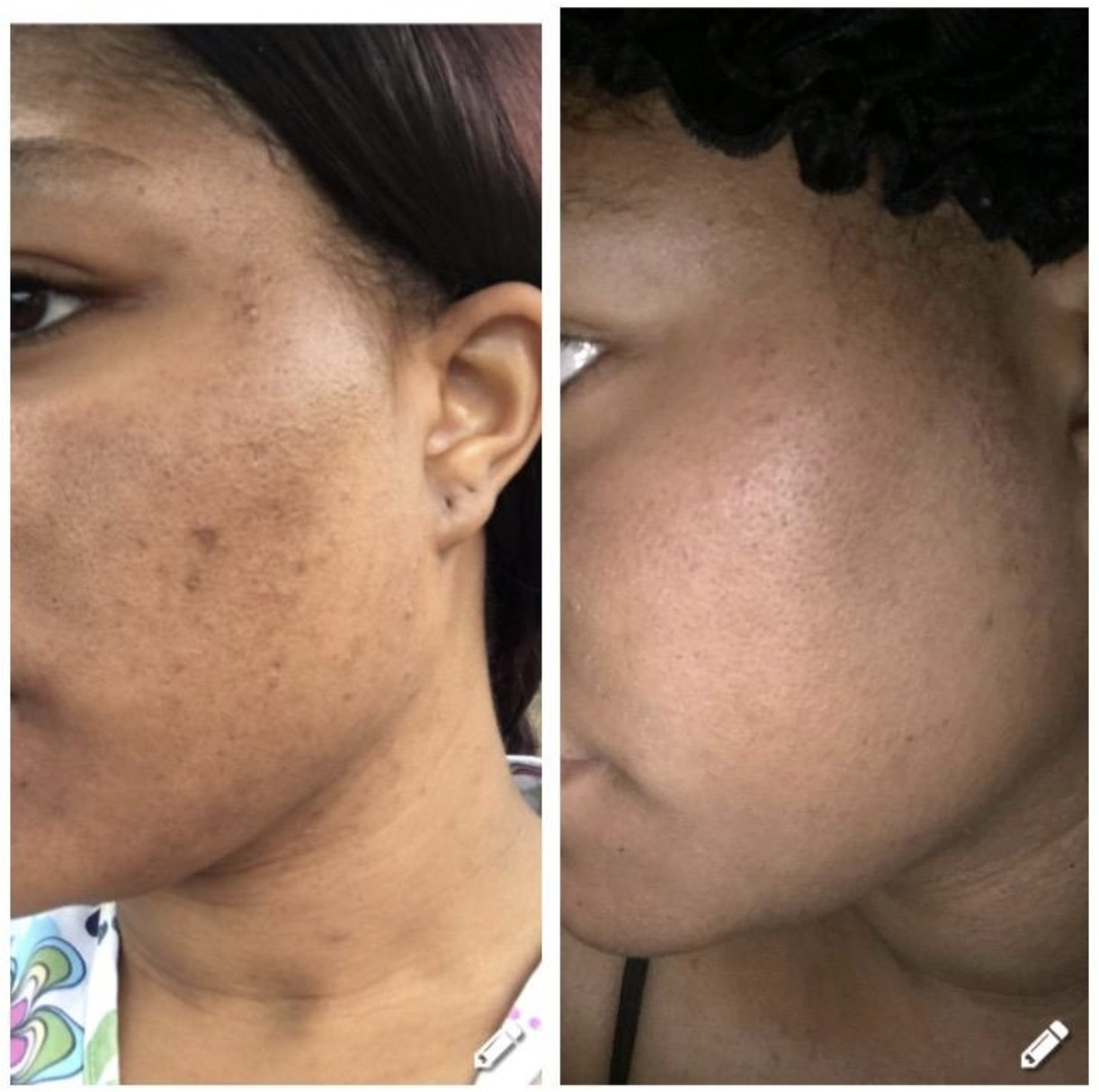 A before and after of a person's cheek