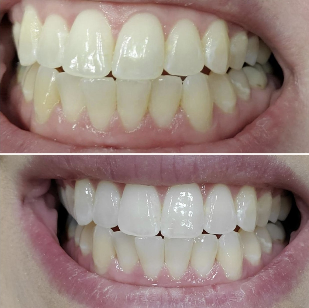 A before and after of teeth