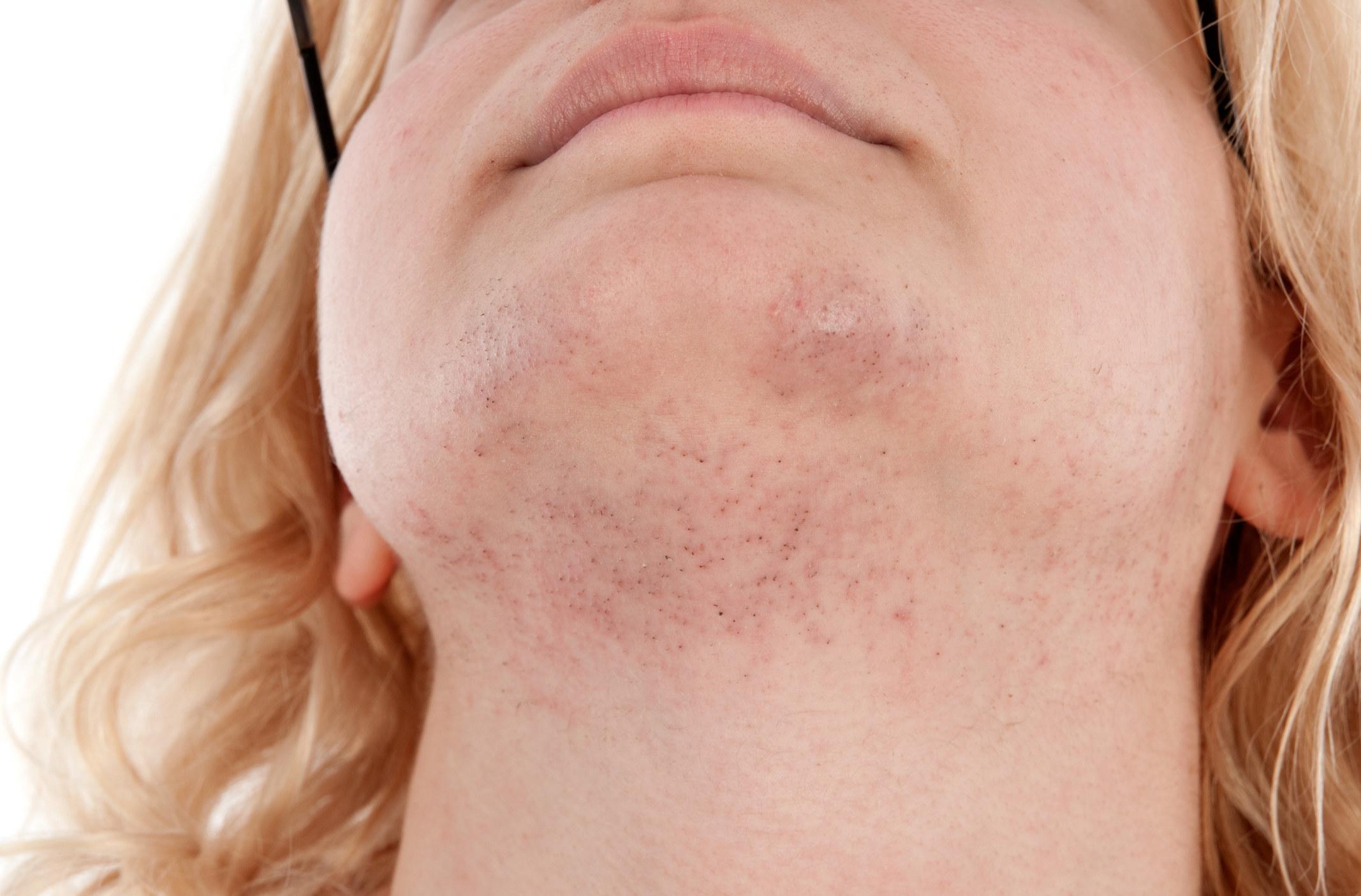 A closeup of a woman's chin hair