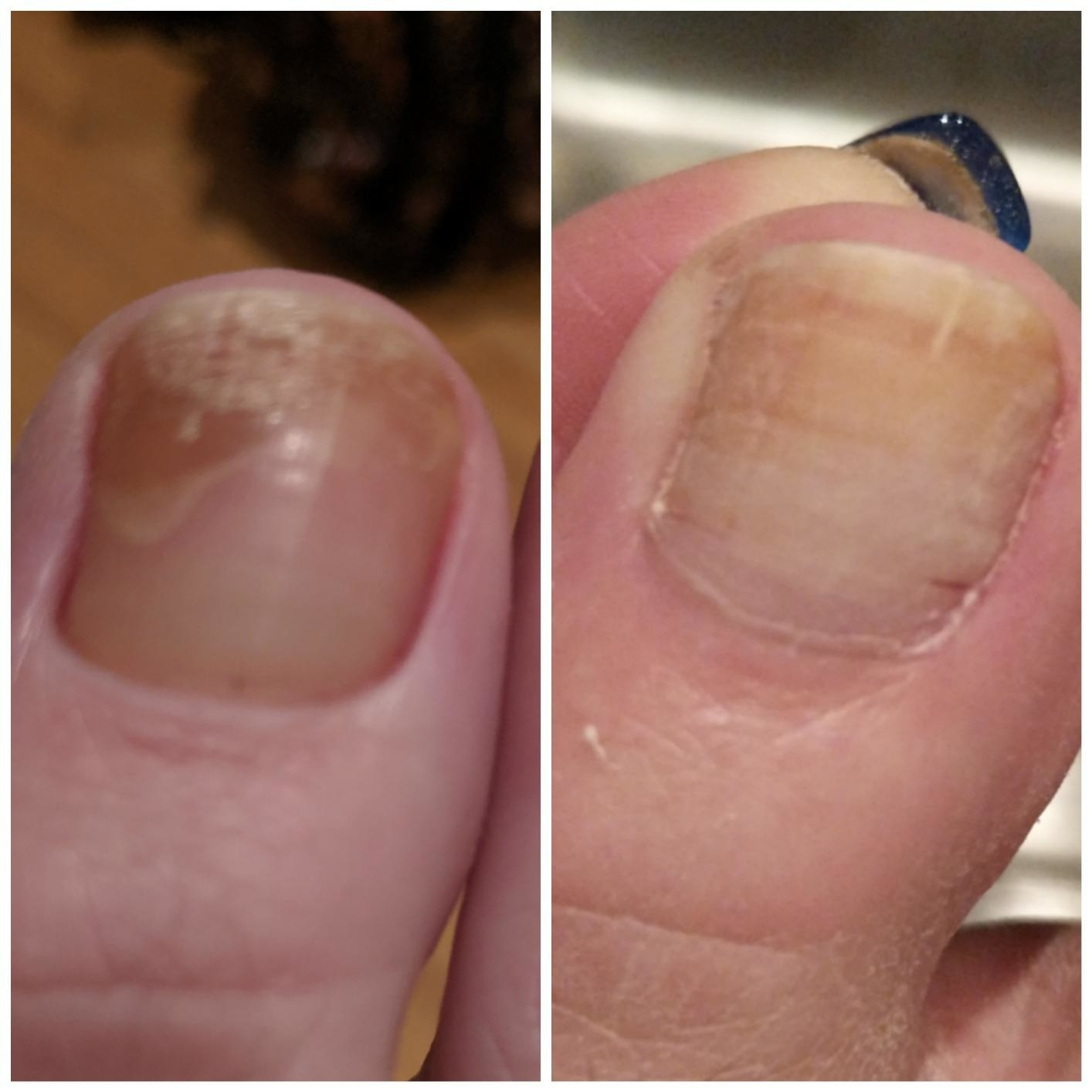 Before and after of reviewer's toenail showing the pen got rid of their toenail fungus