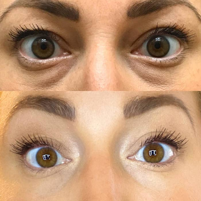 Reviewer's before and after results of using the Maybelline Instant Rewind Eraser Dark Circles Treatment Concealer