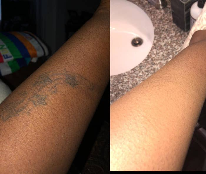 before: arm with tattoos after: no visible tattoos