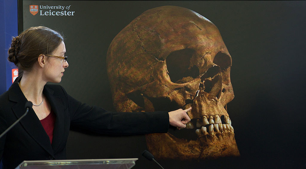 A researcher pointing to the damaged skull of Richard III