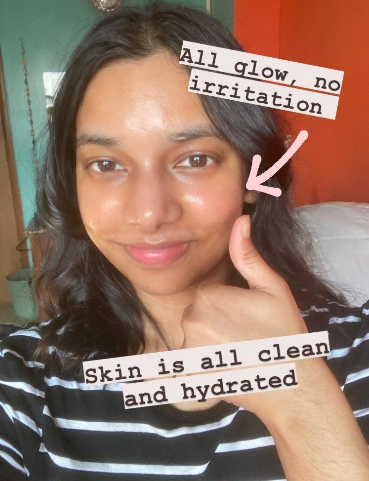 writer showing dewy hydrated skin after going through skincare routine