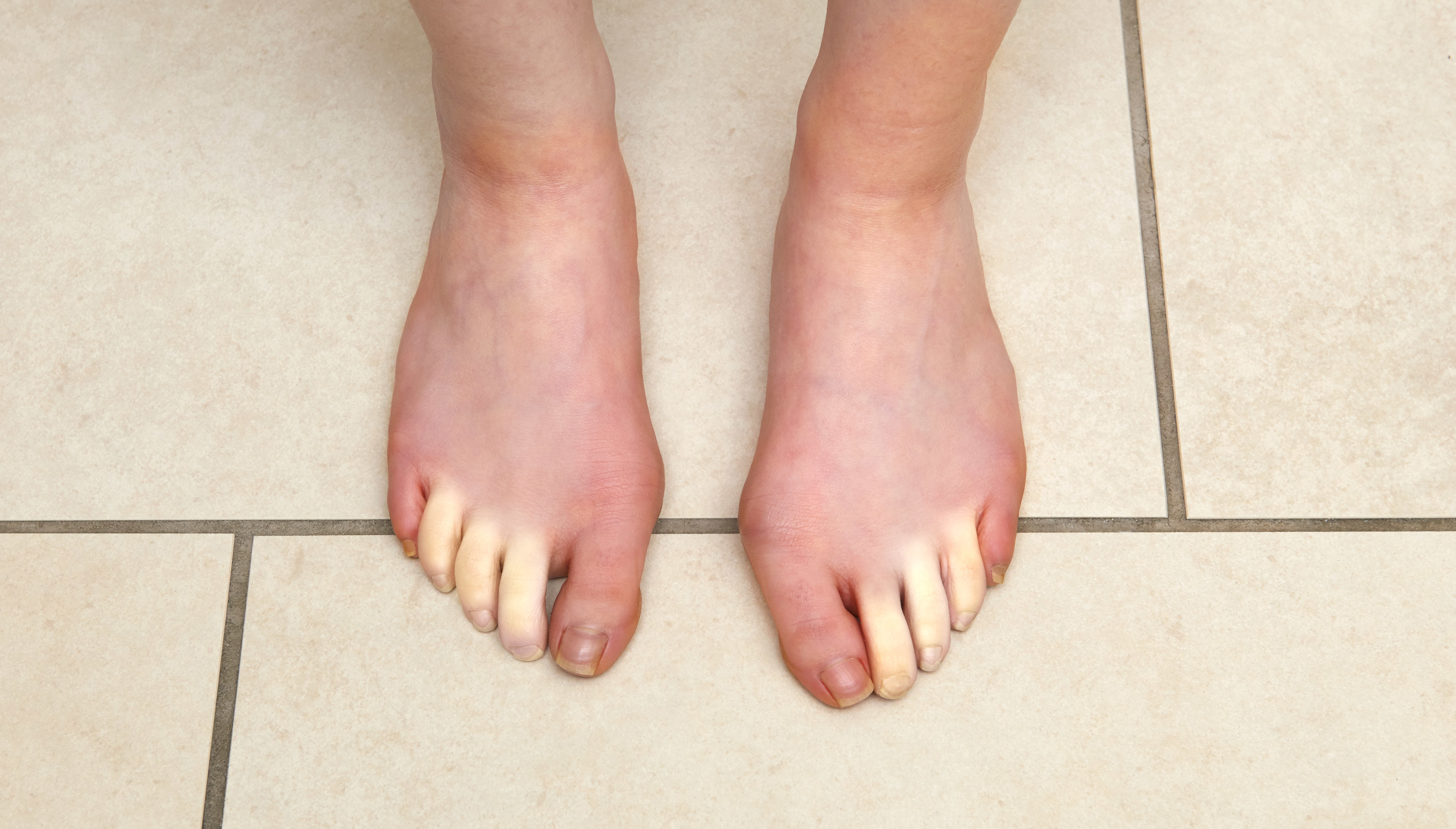 A person with Raynaud's phenomenon