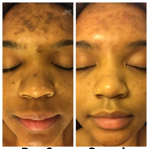 a reviewer's day one and three week complexion which has significantly lightened