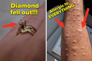 A ring where the diamond fell out, and an having allergic reactions to all allergies