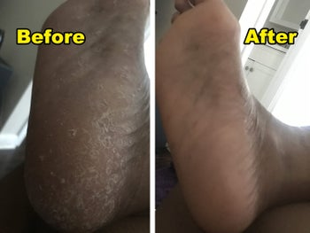 a split before and after image of a reviewers foot looking dry and cracked and the same foot looking moisturized